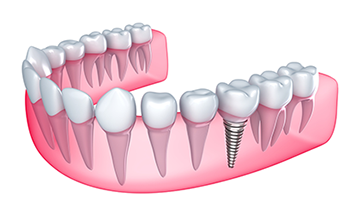 Dental Implants in Frederick, MD